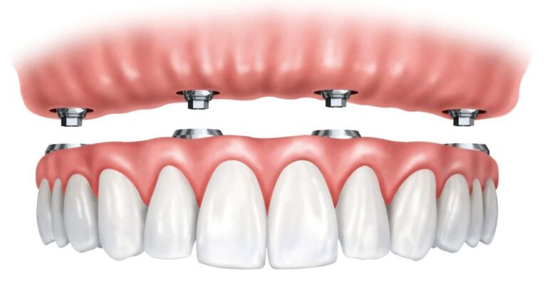 Snap-on veneers vs. fixed dentures: Which is best and why?